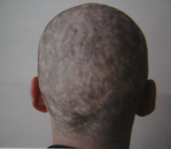 Фото проявления сифилиса
