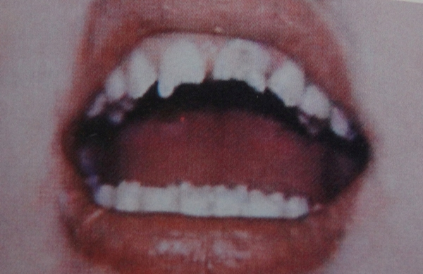 сифилис, лечение в Оренбурге
